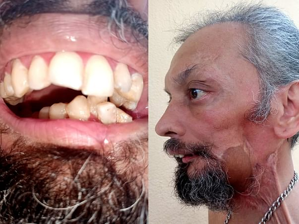 Help Pradeep For His Jaw Reconstruction Surgery