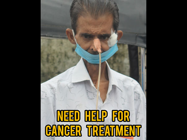 51 Years Old Rajendra Saini Needs Your Help Fight Oral Cancer