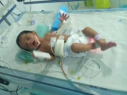 This 20 Days Old Needs Your Urgent Support To Undergo NICU Care