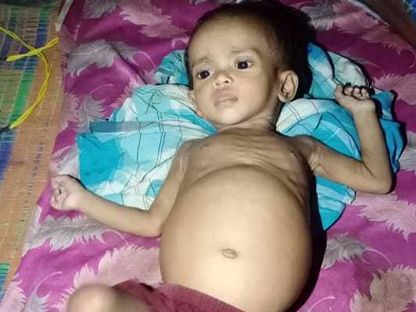 1 Year Old Saniah Needs Your Recover Stomach Tumour