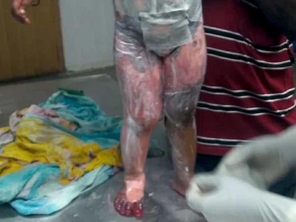 Please Help My Nephew from Severe Burn