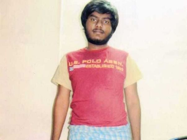 Help Vijay replace his Amputated leg