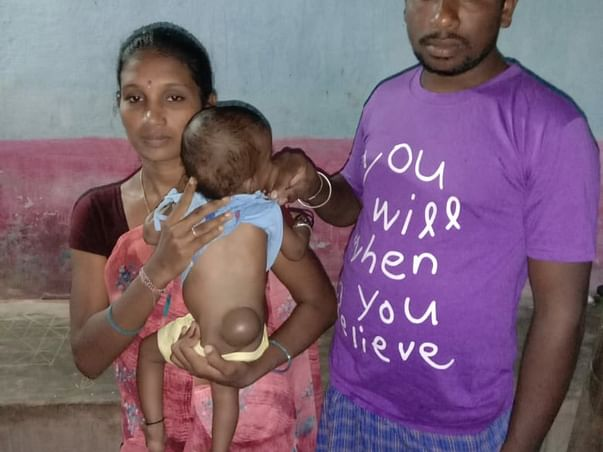 6 Months Old Aadhya Needs Your Help Recover Tethered Spinal Cord