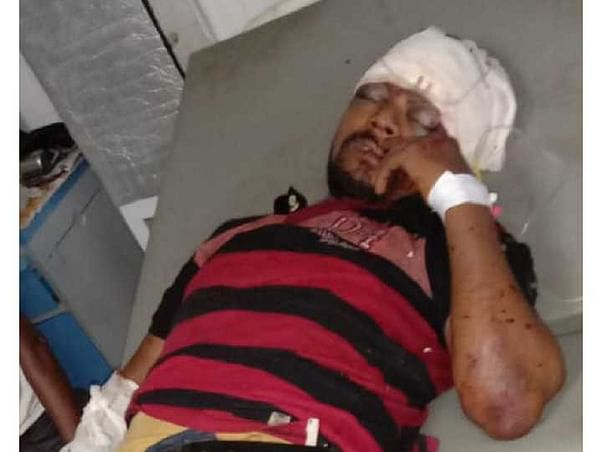 Please Help Mantu Chauhan who met with an Accident