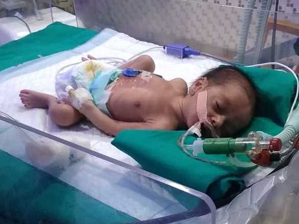 This 10 Days Old Needs Your Urgent Support In Fighting Hydrocephalus
