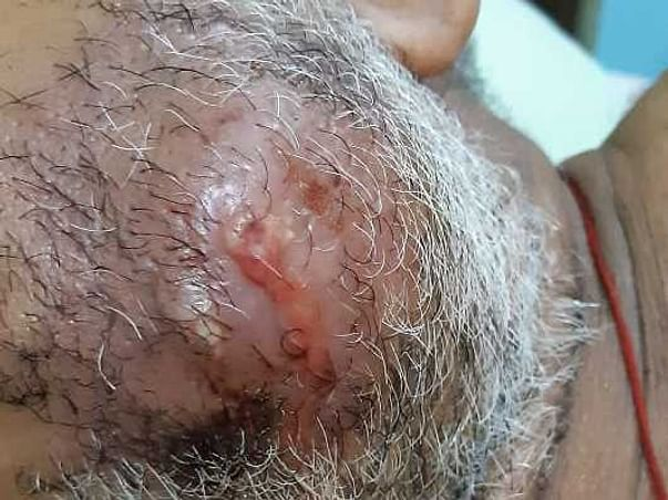 HELP MY FATHER TO FIGHT MOUTH CANCER