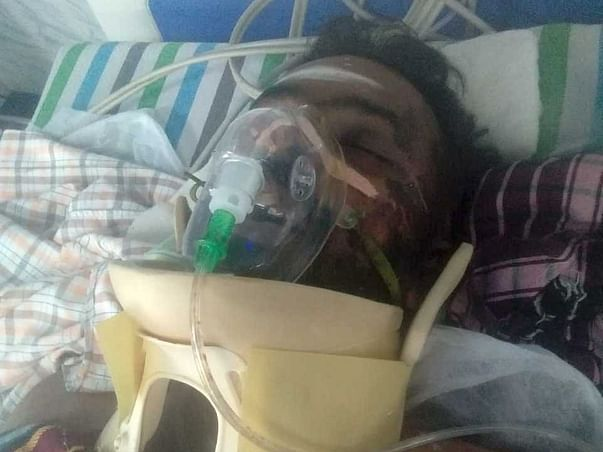 My Friend Needs Your Urgent Support In Fighting Major Accident Multiple Fractures