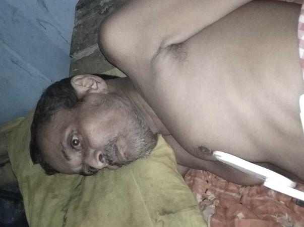 Support Narayan Prasad Gupta Fight From Spinal Tumor