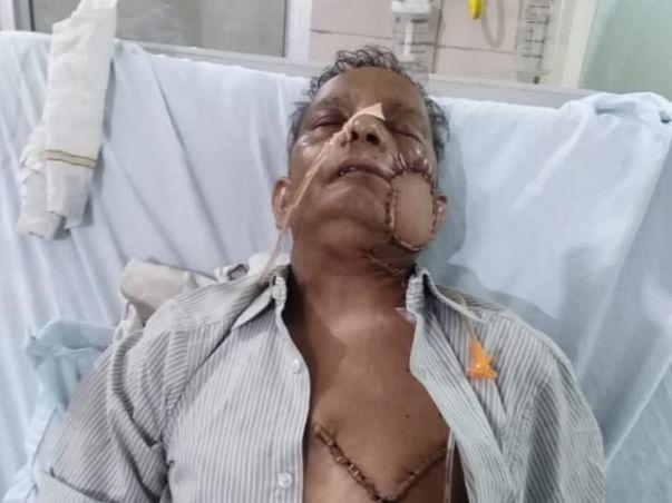 Help Mr suresh kumar gupta for treatment of oral cancer