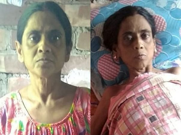 Please Save My Mother, She Wants To Lead Normal Life.😢🙏