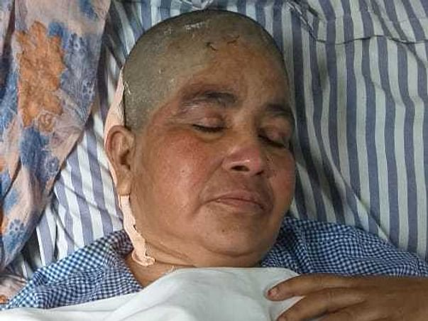 This 56 years old needs your urgent support in fighting Brain tumor