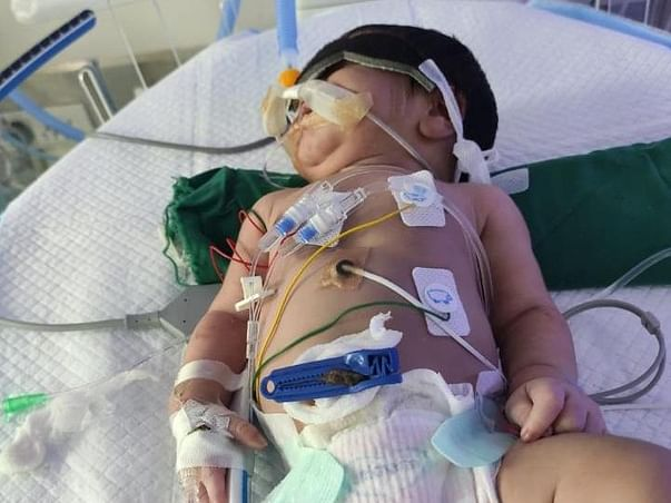 Support Baby of Kudipudi Sai Devi fight/recover from high risk Arterial Switch VSD surgical Closure and COA Repairs