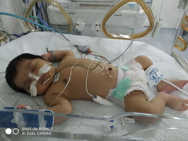 Support Baby Of K Saidevi Recover From Heart Disease