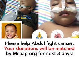 2 yr old kid Abdul needs your help fight cancer. Please save the child