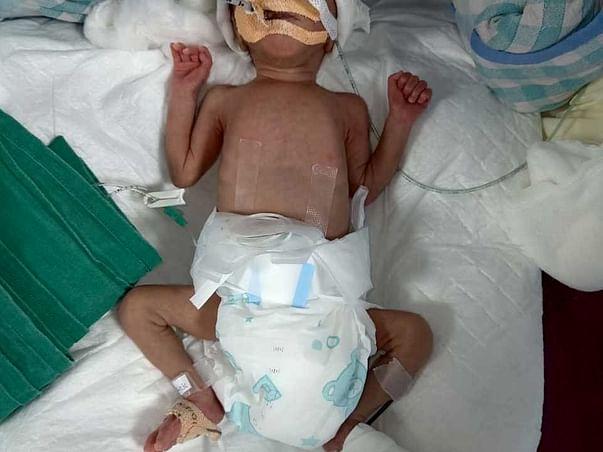Appeal for Donation for Newly Born Female Babies of Meghana Darekar