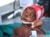 After Surviving Multiple Ailments, This Baby Needs Your Help One Last Time