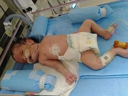 This 28 Days Old Needs Your Urgent Support To Undergo NICU Care