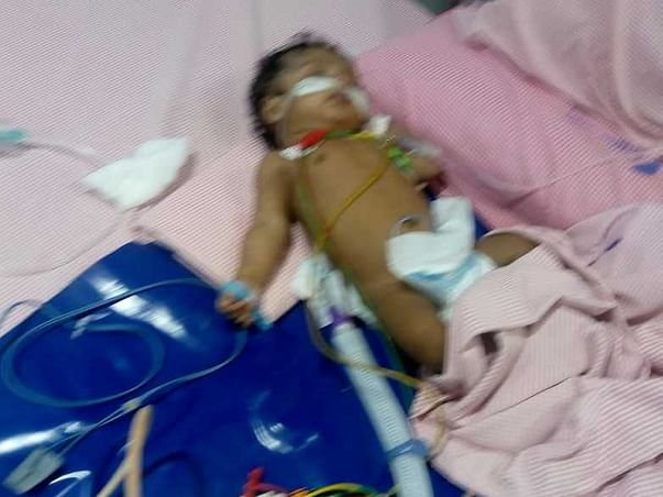 Help Harshith Recover From Polymorphic Ventricular Tachycardia