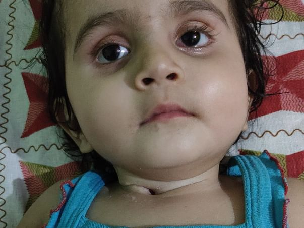My 1year daughter battles for Normal Life