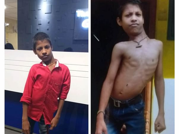 Support Yuvaraj - Spinal Disorder surgery