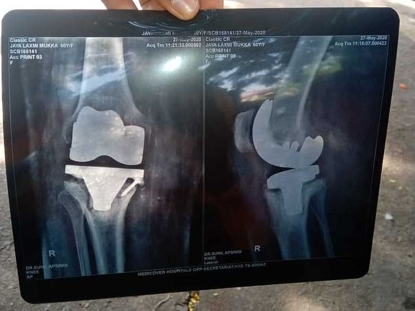 My mother is struggling with Knee Replacement, help her