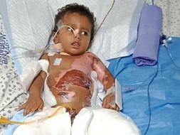 2-Year-Old Fell Into A Boiling Pot Of Curry And Burned 50% Of His Body