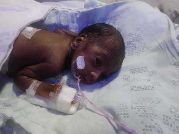 My Daughter Is Born Preterm ,Help Her