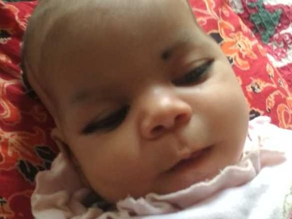 2 months old Amaira needs your help fight Sacrococcygeal teratoma