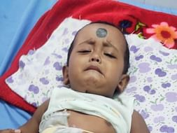Biswajit phatak.To my friends son USG whole abdomen is very sick pleas