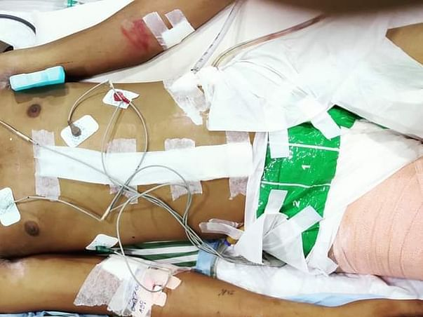 Support Deepak Recover From Accident Multiple Injuries