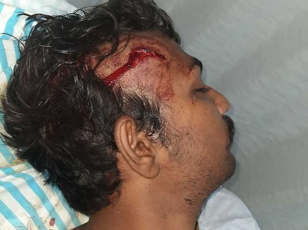 Support  Gnandeep Surapaneni Recover From Brain Hemorrhage
