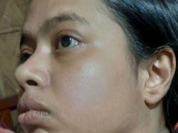 Support Joyeeta Bhattacharjee Fight From Tumor { Parotid gland  }