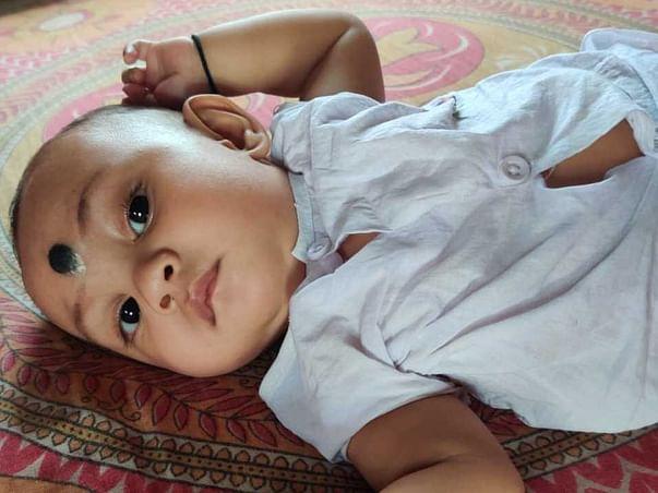 5 Months Old Divyan Bey Needs Your Help Fight Lumbar Disease