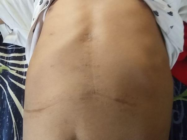 Help My Son Rishi Undergo Liver Transplant