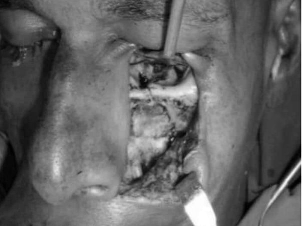 This 40 years old needs your urgent support in fighting Zygomaticomaxillary facture
