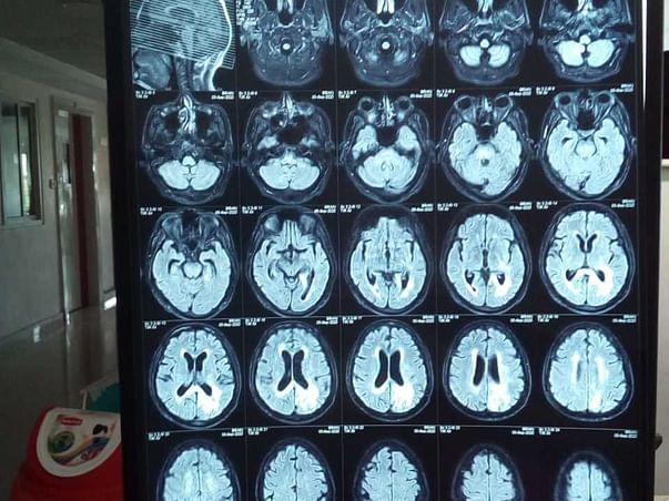 Support Bottu yadagiri Recover From Brain Cancer🙏