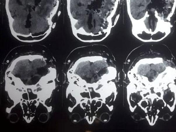 Help my brother fight Brain tumor