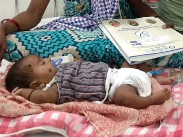 This 1 Month Old Baby Of Latha Needs Your Help Fight Acyanotic Heart Defects