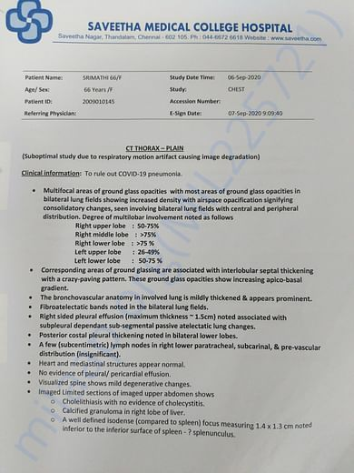 Admission date to ICU