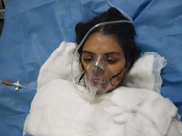 Support Tadikonda Bindu Susmitha Recover from Accidental Burns