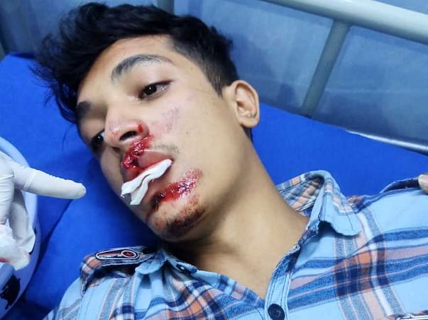This 20 Years Old Needs Your Urgent Support In Fighting Road Traffic Accident With Face Injuries