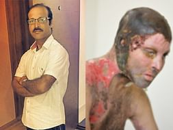 Support Uttam Naik Acid Attack Recovery