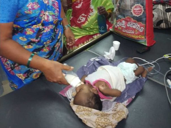 3 Months Old Ganpedi Pravallika Needs Your Help Fight Cardiomegaly