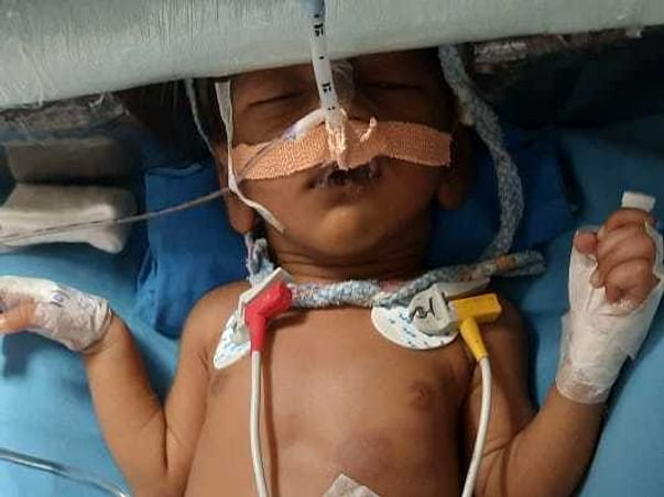 24 Days Old Parv Vishwakarama Needs Your Help Fight NON COMPACTION CARDIOMYOPATHY
