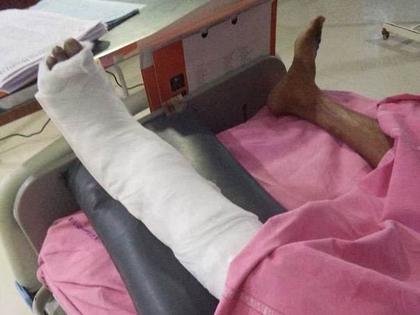 Help P Prakash Recover from Back Bone and Leg fracture