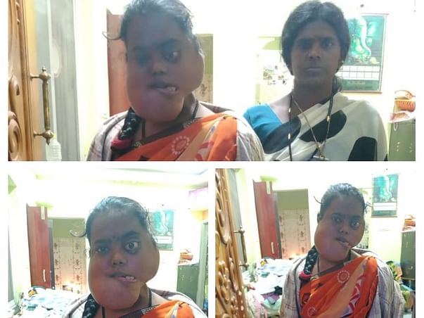 Help Anjinamma Recover From Jaw Cancer