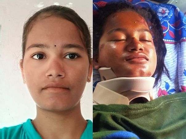 Support Shirisha Recover From Road Traffic Accident
