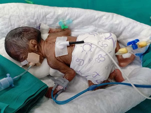 Support Kirtis Baby Recover From Premature Delivery Complications