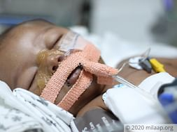 Help My 3 Months Baby Suffering From Diaphragmatic Breathing