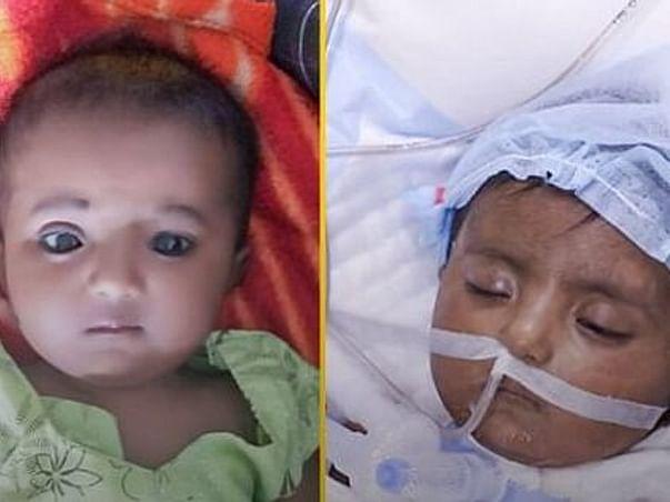 मेरी बच्ची के ऑपरेशन के लिए 20 लाख रुपये की जरूरत है plz आप लोग हेल्प